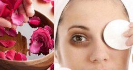 Get Rid Eyes Dark Circles With Simple Remedies