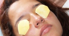 How To Get Rid Eyes Dark Circles With Simple