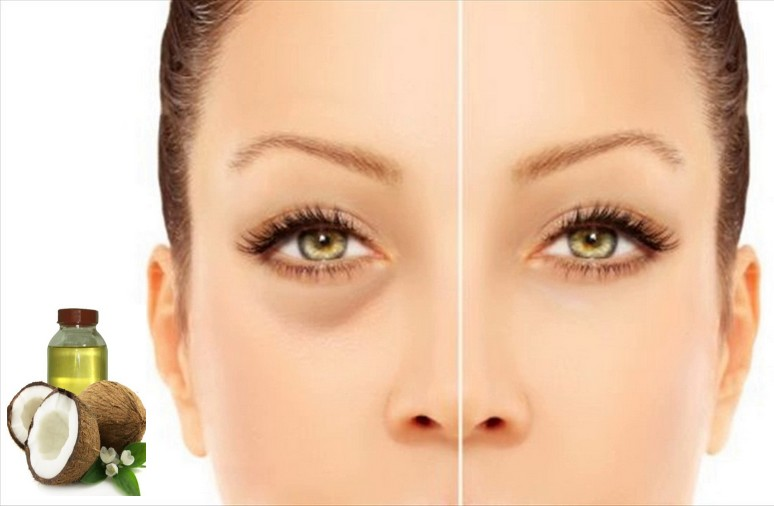 Get Rid Eyes Dark Circles